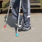 Unfallversicherung – Bestimmung des Invaliditätsgrades